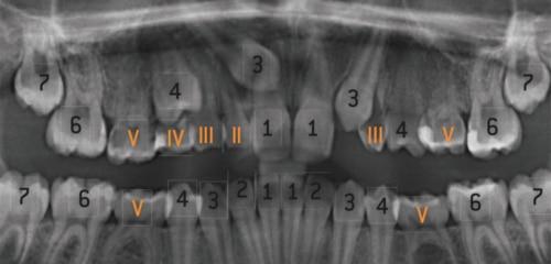 Fehlende-Zaehne-Nichtanlagen-Roentgenbild